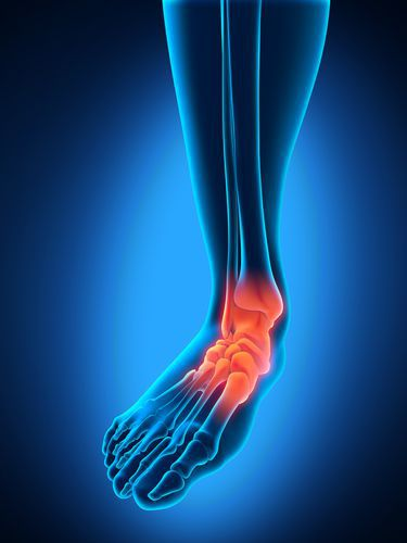 painful-heels