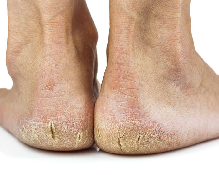Cracked Heels, Dry Skin, And Heel Fissures
