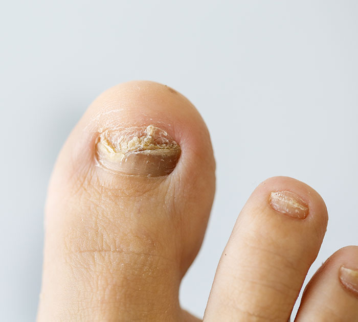 Fungal Nail Infections: their Causes and Treatment