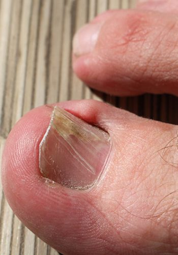 Improving Ingrown Toenails