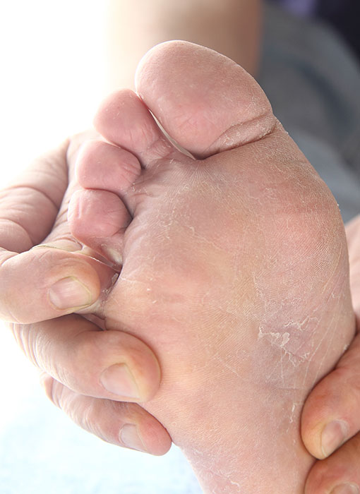 Skin Conditions On The Feet