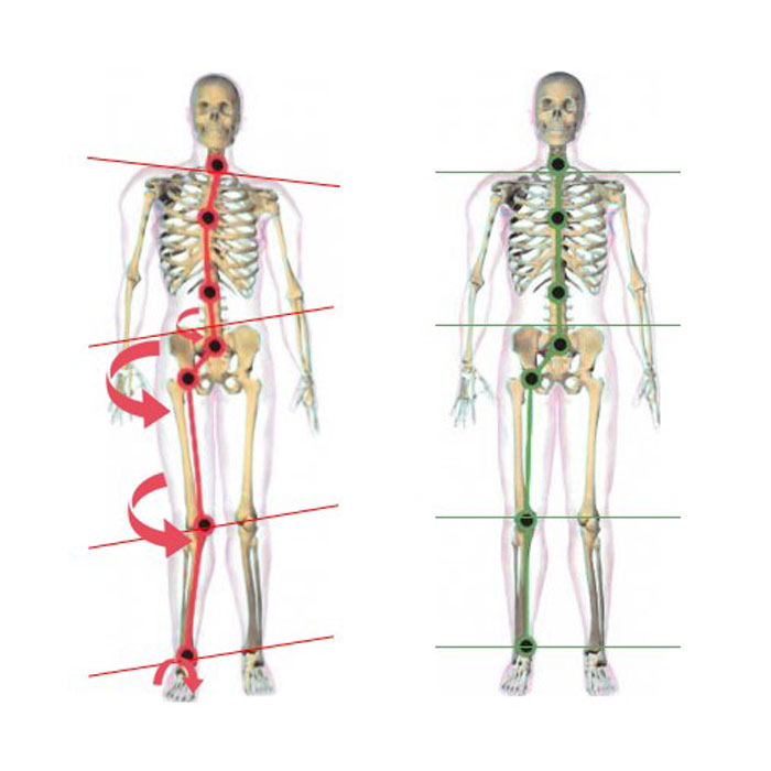 Orthotics and Skeletal System