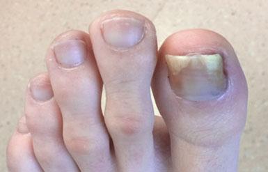 Fungal Toenails - Ottawa Foot Clinic