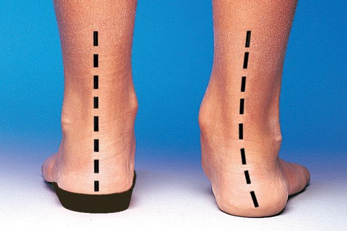 Orthotic Foot Alignment