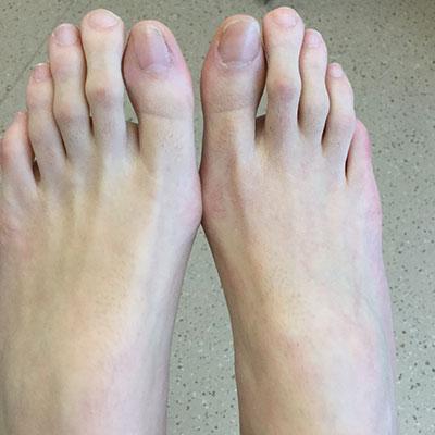 Blog - Ottawa Foot Clinic