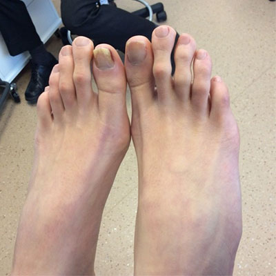 Toenail Fungus Archives - Ottawa Foot Clinic
