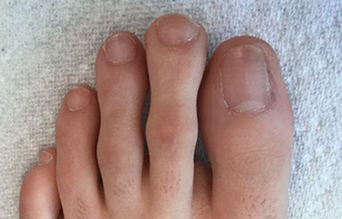How to treat ingrown toenail after surgery