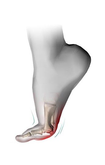 sesamoid-foot